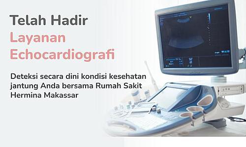 Telah Hadir Layanan Echocardiografi